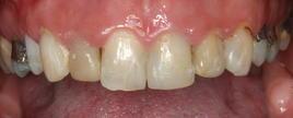 PorcelainVeneers_Patient5_B2