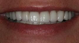 PorcelainVeneers_Patient6_A2